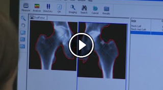http://www.kvue.com/story/news/health/2015/05/17/men-10-times-less-likely-to-be-screened-for-osteoporosis/26999317/