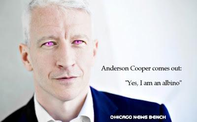 Albino Anderson Cooper Comes Out