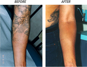 The Tattoo World : Laser Tattoo Removal Cost