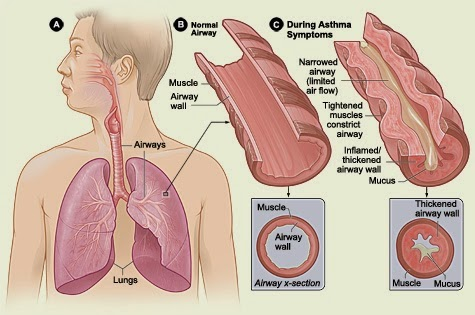 obat sesak nafas, penyebab sesak nafas, mengatasi sesak nafas