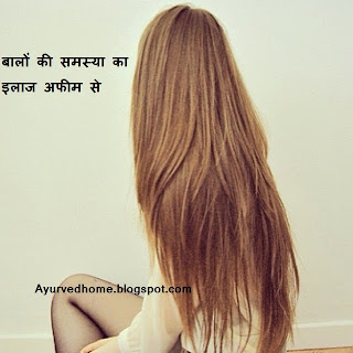 बालों के रोग , balon ke rogon ka ilaj, cure hair problems
