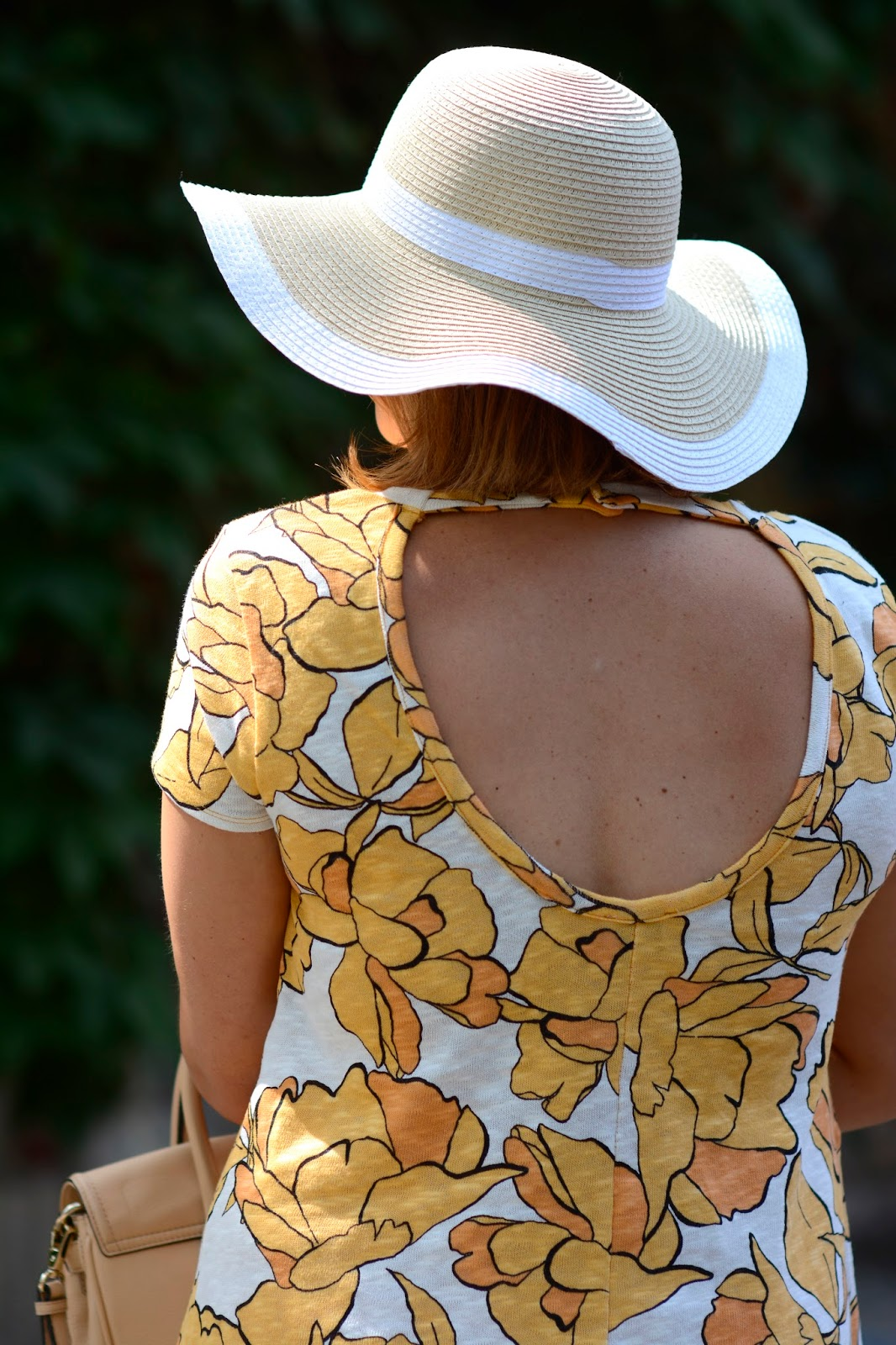 zara, floral, yellow dress, open back