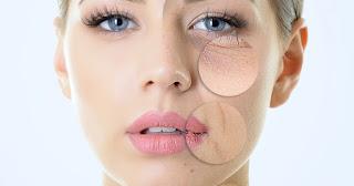 pelle secca, caratteristiche pelle secca, trattamenti specifici per pelle secca