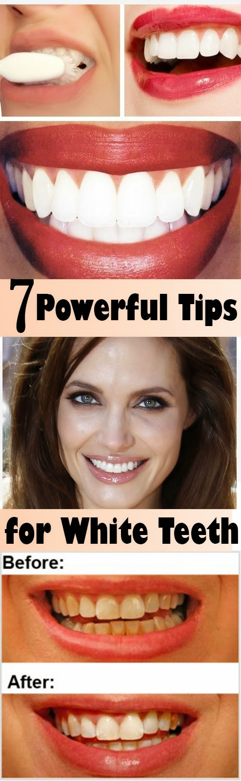 how to close a gap in your teeth naturally