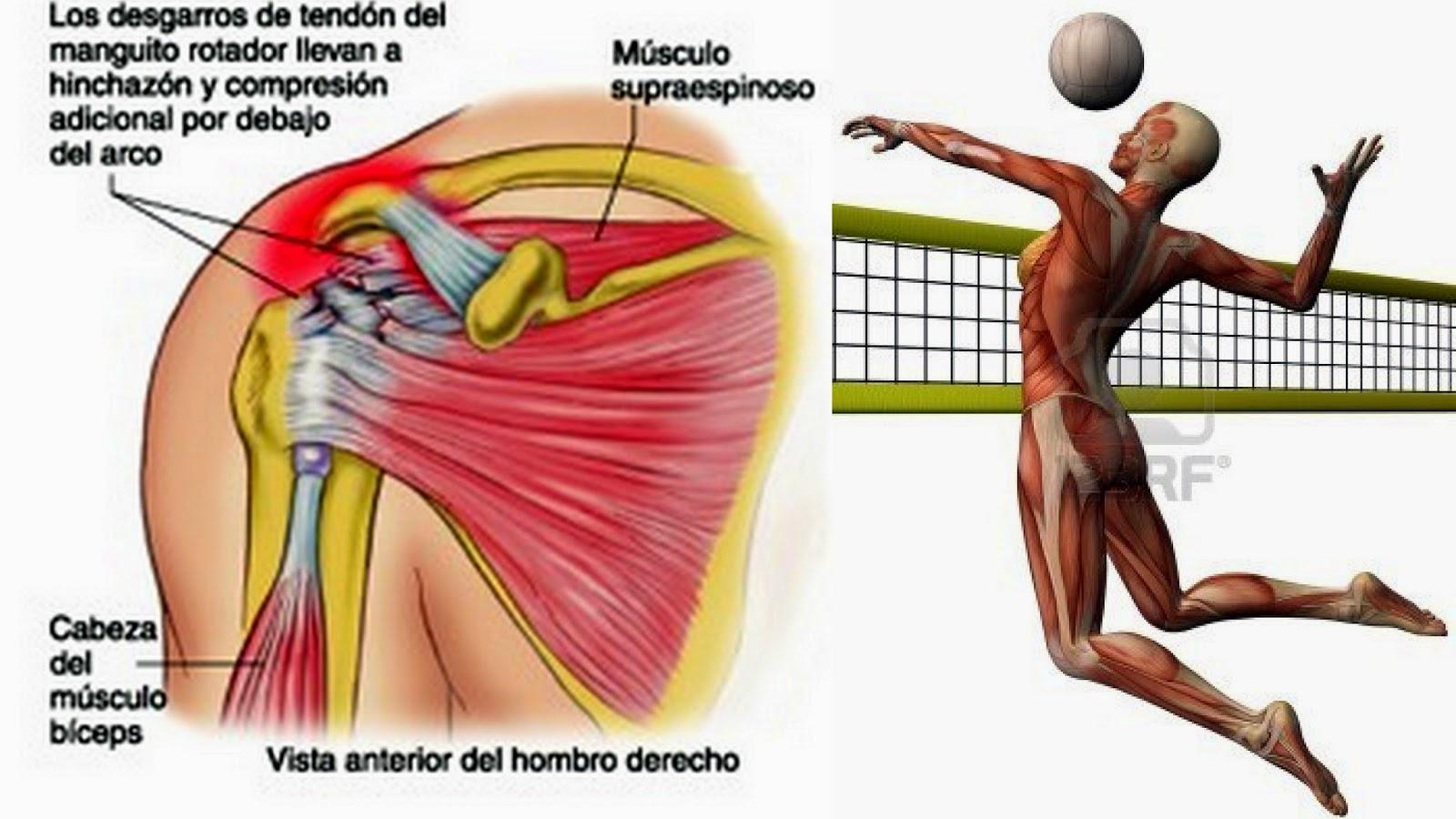 Excelente Hombro Anatomía Lesión Colección de Imágenes - Anatomía de ...