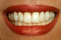 علاج اصفرار الأسنان images.jpgط§ط¹.jpg