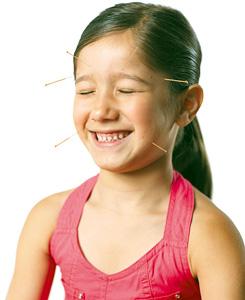 acupuncture for children