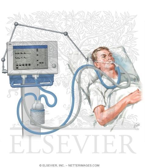 Mechanical Ventilation Part 1 Ppt Free Medical Slids