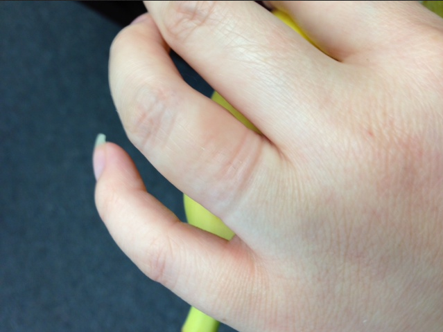 how to get ring off finger when stuck