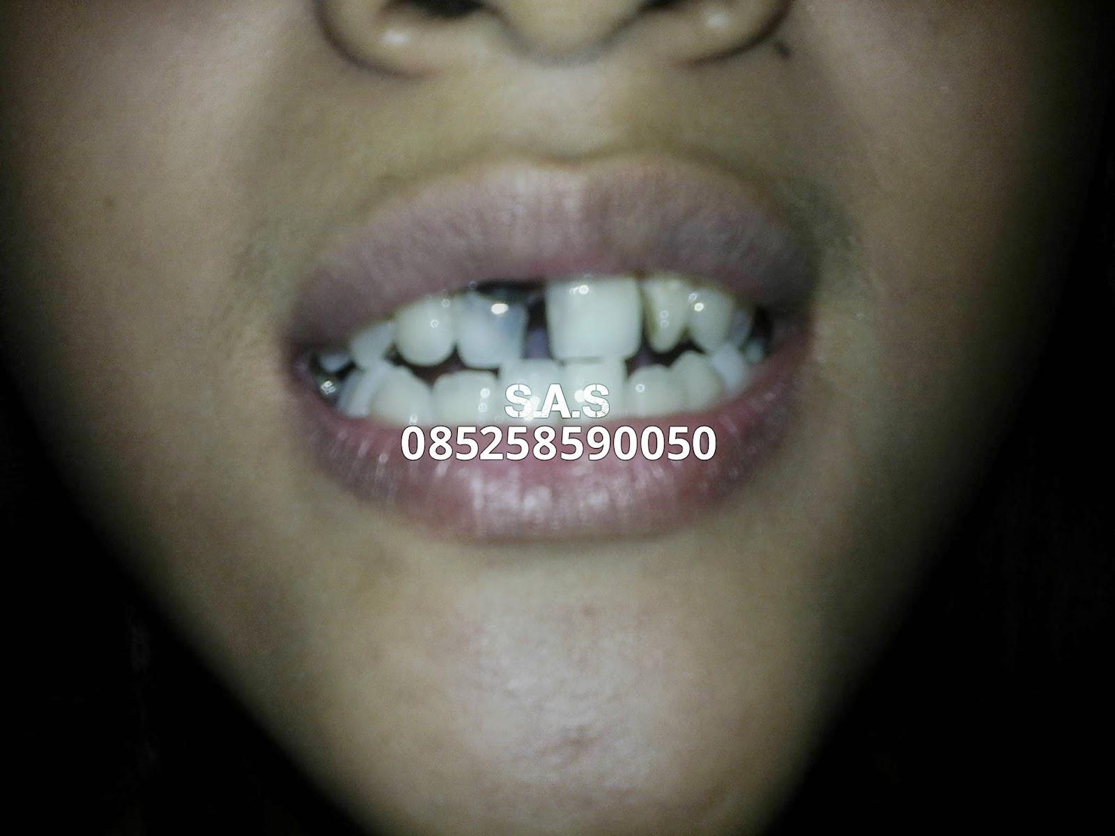 S A S Ahli Gigi Kota Pati Jateng Kota Jember Jatim Januari