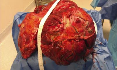 GAMBAR menunjukkan tumor yang dikeluarkan dari dalam perut Evelyn.