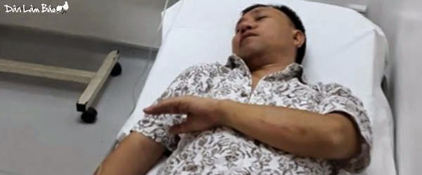 Communist security motorbike strikes and injures Nguyễn Bắc Truyển