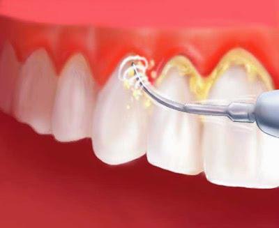 tips membersihkan karang gigi