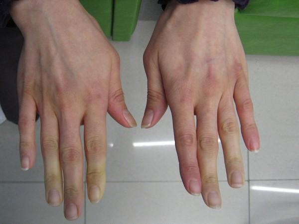 mauvaise circulation sanguine mains