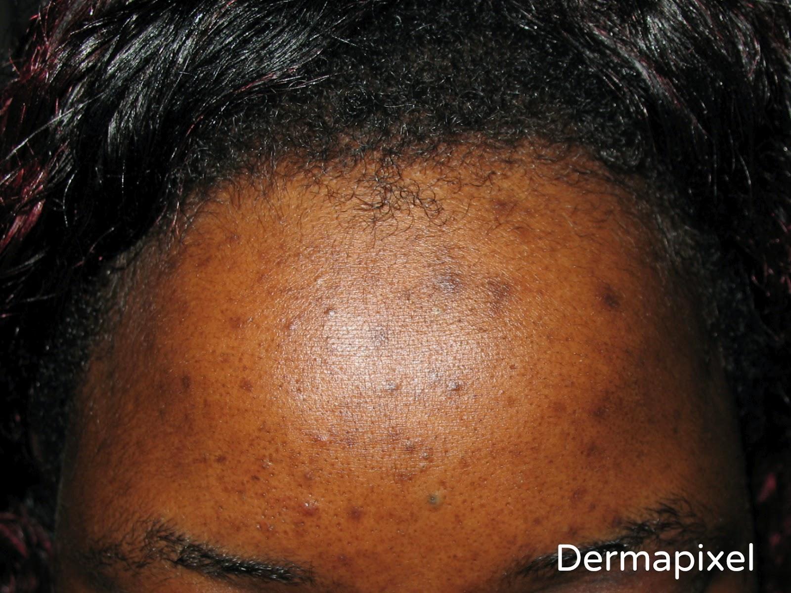 Manchas faciales en la piel oscura