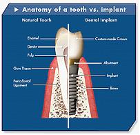 Dental Implant Arizona