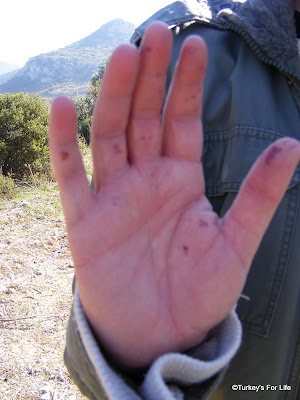 Olive Harvest Hand Damage