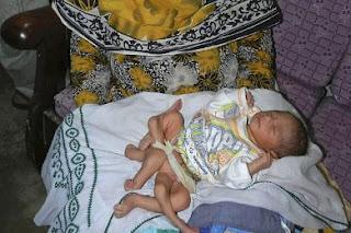 رضيع باكستاني بـ 6 أرجل يصيب والديه بالذهول