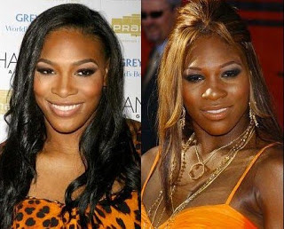 did serena williams get a nose job serena williams stepped