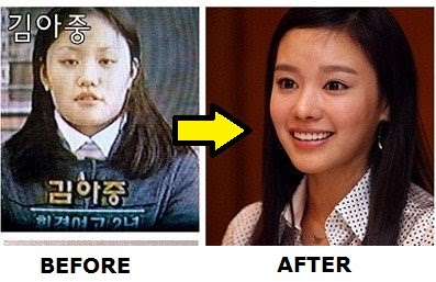 kim ah joong before and after plastic surgery