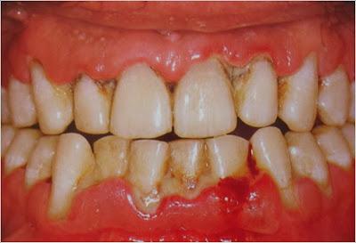Fonte: http://3.bp.blogspot.com/-M6fRfyhfdB4/ThI-dKBUw9I/AAAAAAAABA4/W8MpvYraidE/s1600/periodontite.jpg
