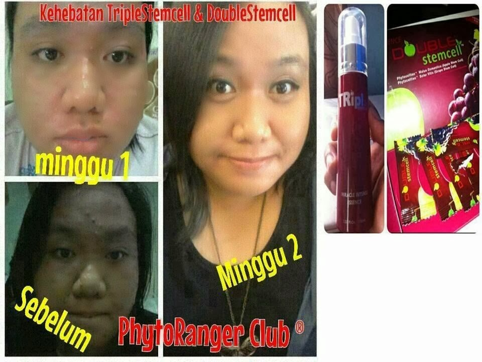plan pemasaran double stemcell, phyto science malaysia, phyto science perlis, income phyto science, double stemcell murah, triple stemcell malaysia