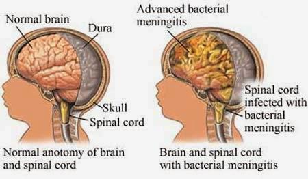 Gejala Meningitis Radang Selaput Otak
