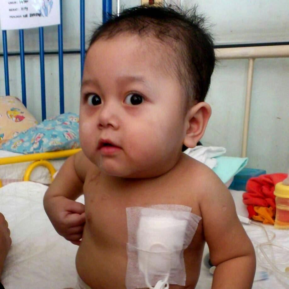 Muhammad Izzsyraq Azraq, Short Bowel Syndrome