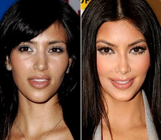 Kim Kardashian Lips Injections