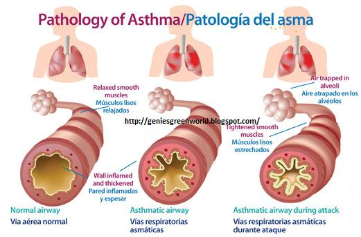 Penyakit Asma Dan Pengobatannya