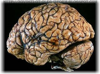 Мозг мамонта