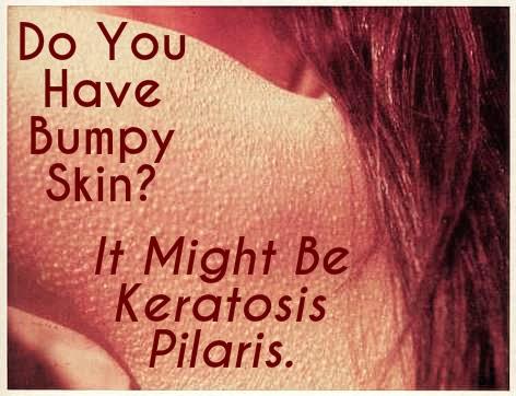 how to get rid of keratosis pilaris on buttocks