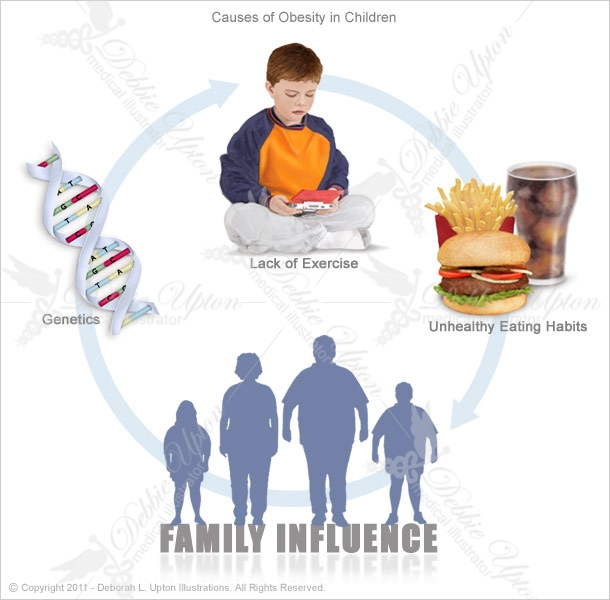 obesity causes Obesity is a serious concern because it is associated with poorer mental health outcomes, reduced quality of life, and the leading causes of death in the us and worldwide, including diabetes, heart disease, stroke, and some types of cancer.