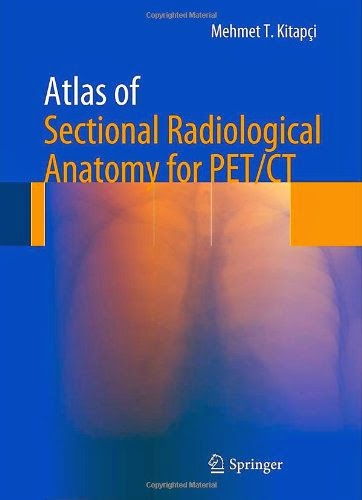 http://www.kingcheapebooks.com/2014/10/atlas-of-sectional-radiological-anatomy.html
