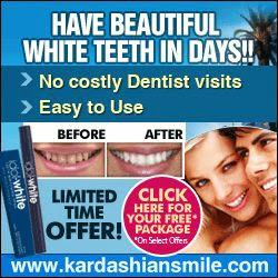 teeth whitening, unique teeth, idol white
