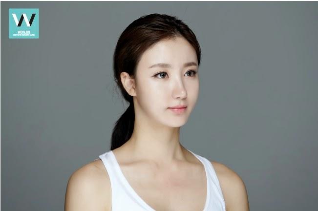 Operasi Plastik Hidung di Bedah Plastik Wonjin Korea
