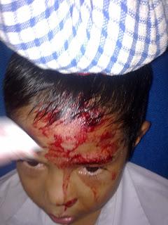 kecederaan serius, budak sekolah luka