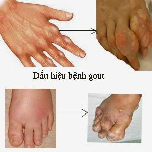Các dấu hiệu nhận biết bệnh gut - (gout)