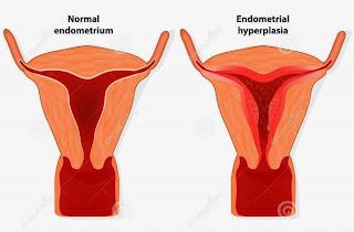 obat penebalan dinding rahim tradisional