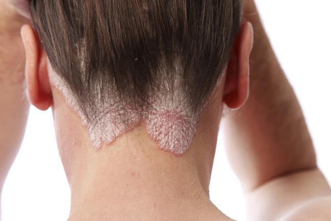 Почему на коже головы появляются болячки