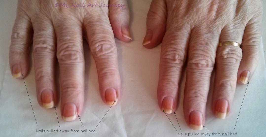My Nail Art Journey: Before and After Photos of My Nails, Manicure ...