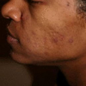 home treatment for acne: