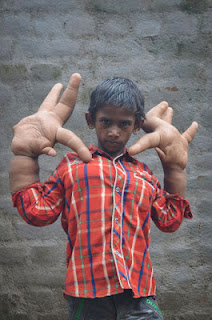 boy-with-giant-hands