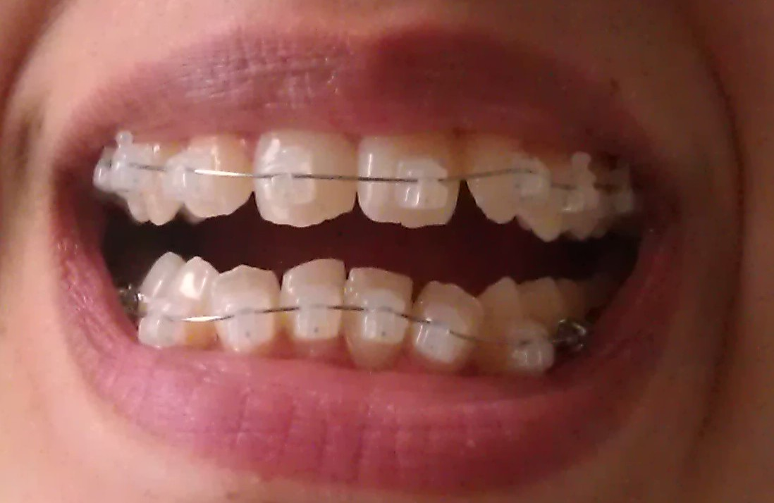 How do you hook up with braces — pic 9