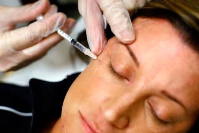 botox treatment delhi