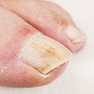 white toenail fungus treatment