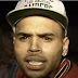 Woman Sues Chris Brown For Assault,Shares Picture Of Her Injuries (See)