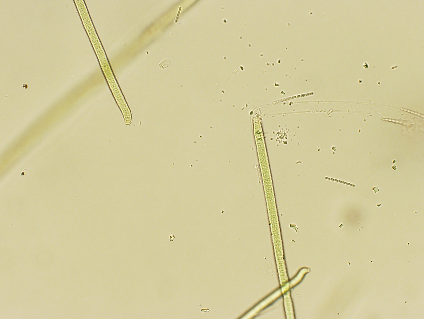 two years and three months of cyanobacteria chapter 20