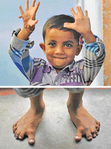 KEADAAN jari tangan Arpan (gambar atas) dan kakinya.