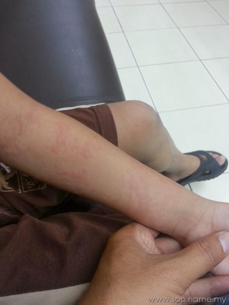 Azwar kena alergi kulit